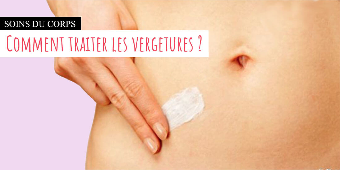Vergetures causes et effets