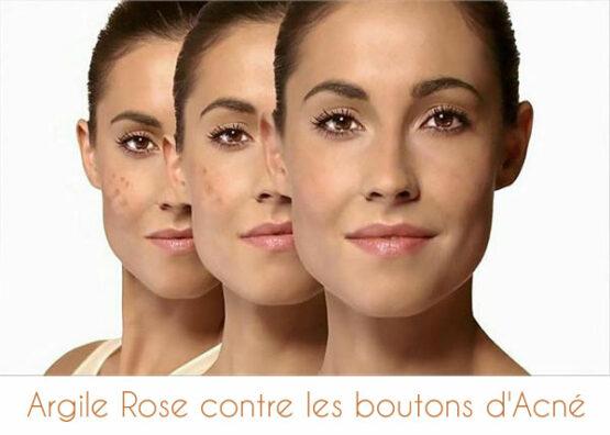 Argile rose pour traiter les boutons d'acné