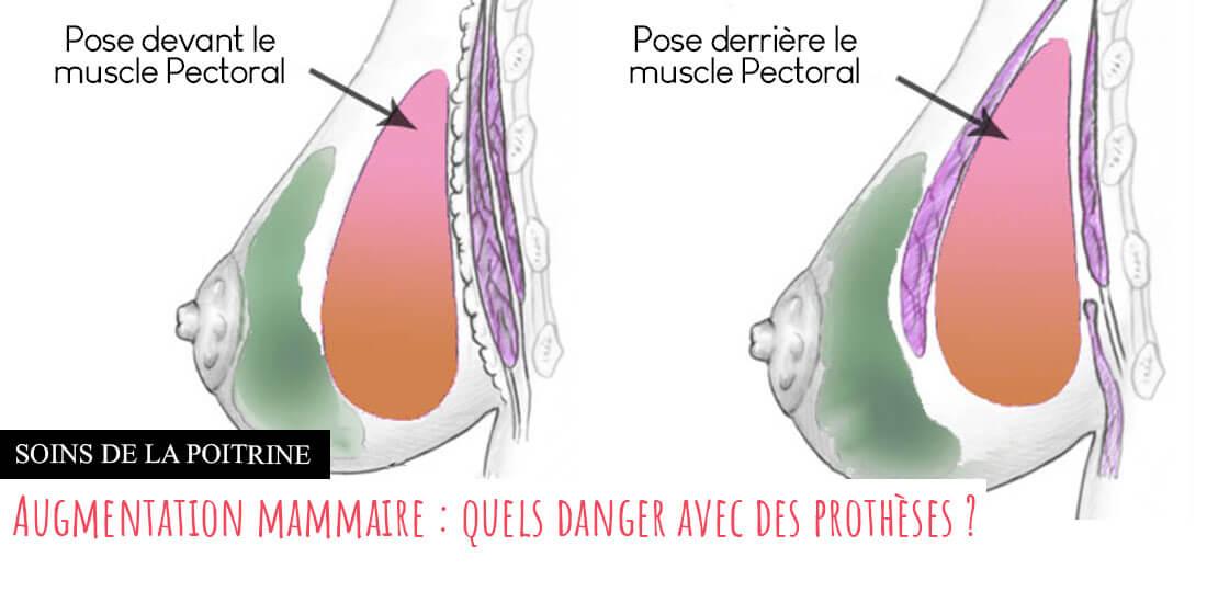 Augmentation mammaire avec implants
